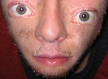 Deformed Face pics