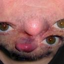 Face Transformation Photo